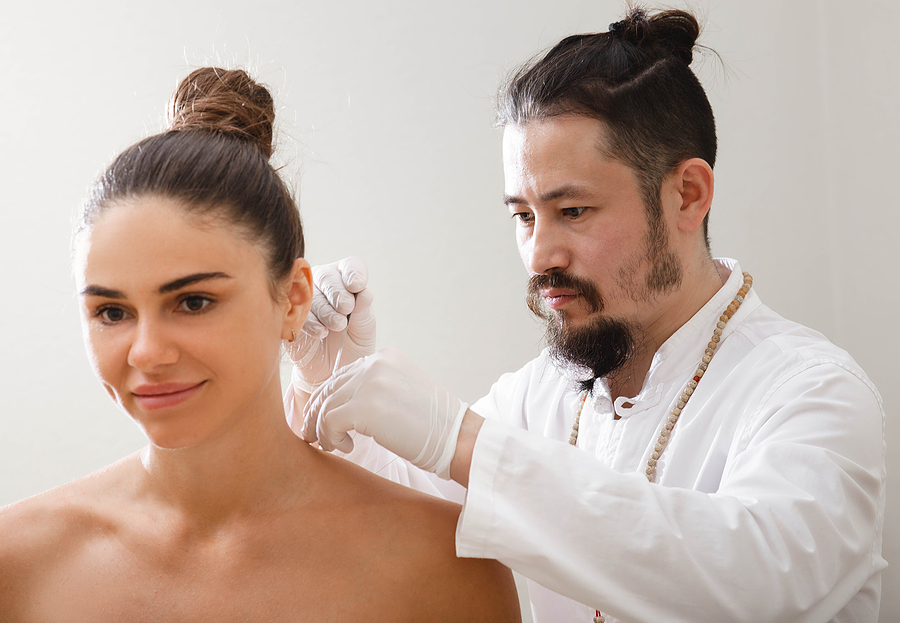 Woman Getting An Acupuncture